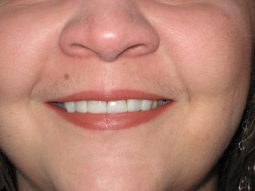 New nice white teeth