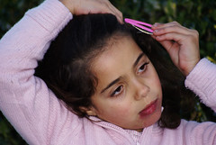 Hemangioma Port Wine Colour (OdeteCondeOliveira) Tags: girl birth marks outcast beautty