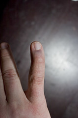 2008.04.13_(18.25.06)-1523 (fordprefectajt) Tags: adam broken finger pinky fracture dip boutonnieredeformation distalinterphalangeal dipfracture