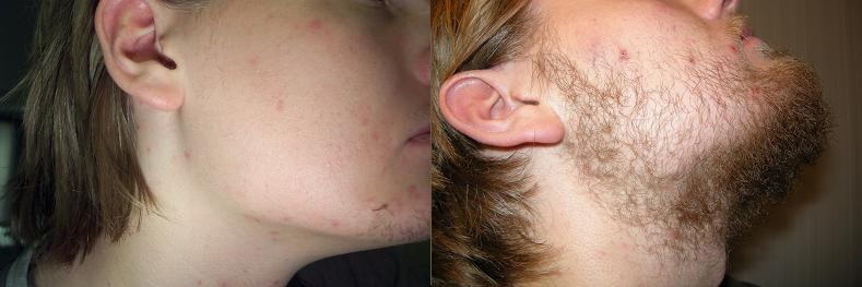 Minoxidil facial hair growth can discussed