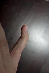 2008.04.13_(18.25.01)-1521 (fordprefectajt) Tags: adam broken finger pinky fracture dip boutonnieredeformation distalinterphalangeal dipfracture