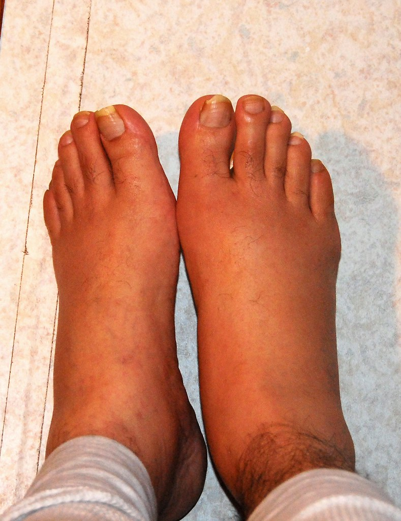 natural organic treatment for gout  (Dec 2007)