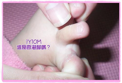 這是香港腳嗎?