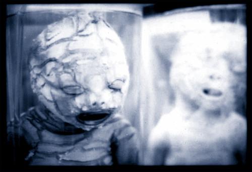 Congenital (harlequin) ichthyosis by Prof. Jas. Mundie.