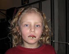 too much candy (schromann) Tags: portrait teeth fake dental gums diamond dentist brilliant zähne cavities diamant receeding dentures paradontose