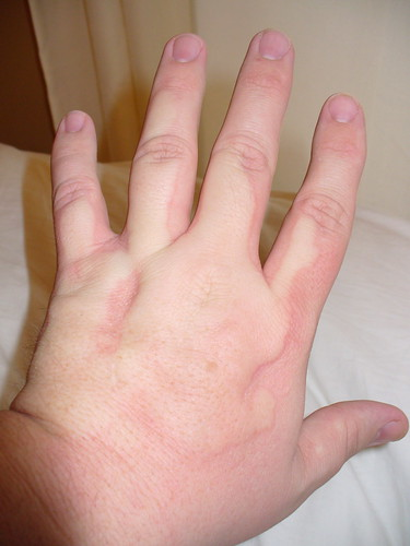 Cold Urticaria Hands Acute Hives Page 112