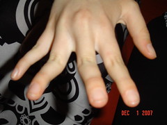 Ashlee's distorted hand (julieawheeler) Tags: birthday jamie 21st campbells
