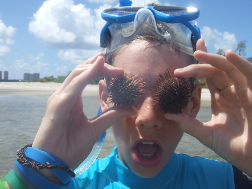 sea urchin eyeballs