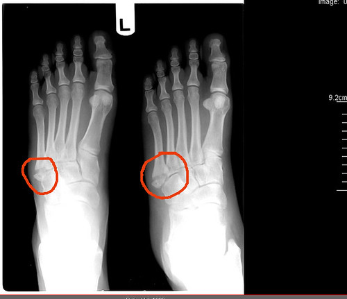 A twisted ankle can cause a Jones foot fracture