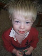 Zeke - no chicken pox yet! (Amy McKenzie) Tags: chickenpox