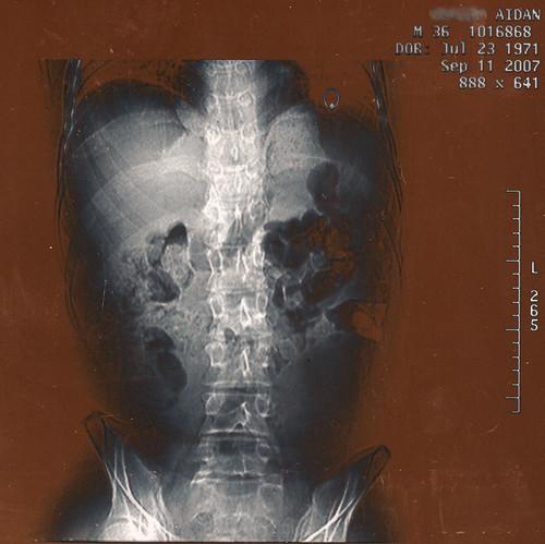 spine crop