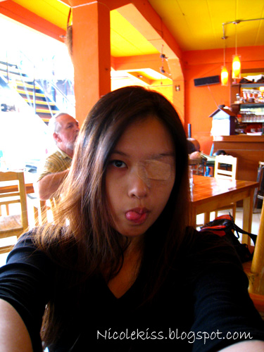 my eyepatch