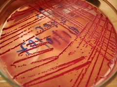 Colonias de Escherichia coli ATCC (scalibur001) Tags: macro laboratory medicine bacteria microbiology bacterium colonies coli ecoli agar atcc microbiologa mcconkey escherichia escherichiacoli