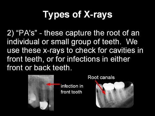 4r x rays 3