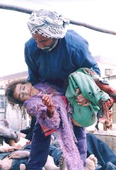 bloodied iraq child