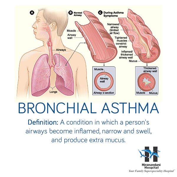 thesis on bronchial asthma Asthma is a disorder of the bronchial tubes characterized by an abnormal twitchiness of the large and small airways to multiple stimuli, leading to widespread narrowing that may change in severity it is a reversible obstructive disease.