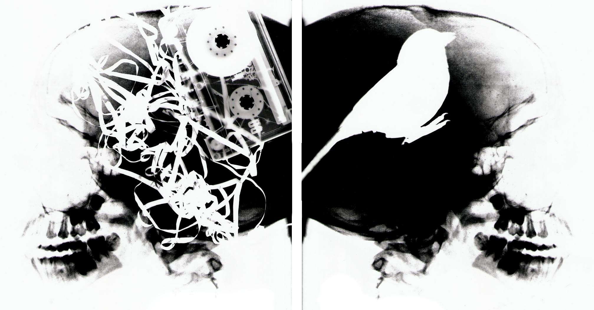 topics  xray rayogram broken skull tape bird cassetteXray Broken Skull