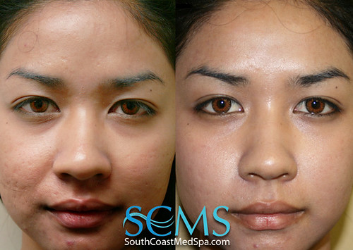 Laser Acne Scar Removal Los Angeles