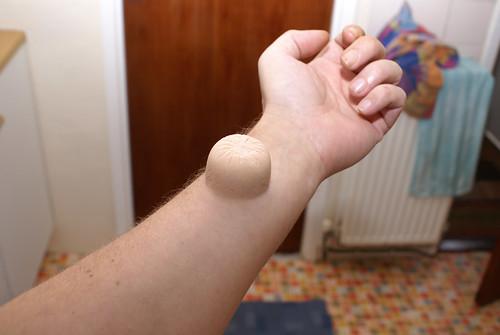 esinalca boils under armpits