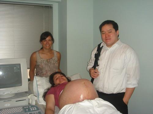 Last Ultrasound - Week 35