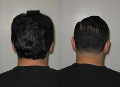 New Haircut, Before & After (10/24/2009)