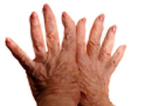 Arthritic Hands (ByersChiro1) Tags: pain calcium surgery medical damage bone bent cripple arthritis bumps lupus cure painful joint disease swelling suffer disabling scleroderma condition fibromyalgia cartilage rheumatoid osteoarthritis degenerative minerials