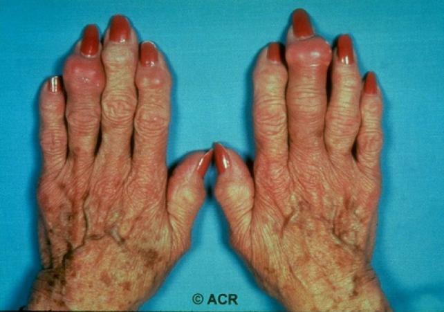 urato monosodico y acido urico como se mide el acido urico en la orina remedio para aliviar crise de gota