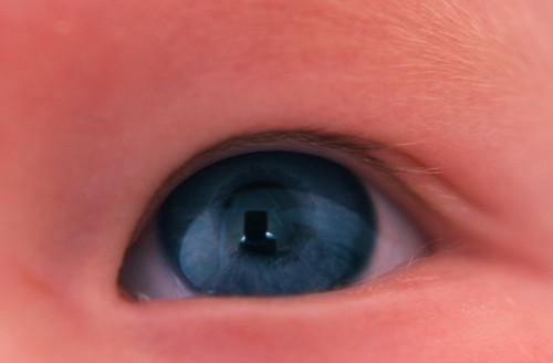 Nora's Left Eye