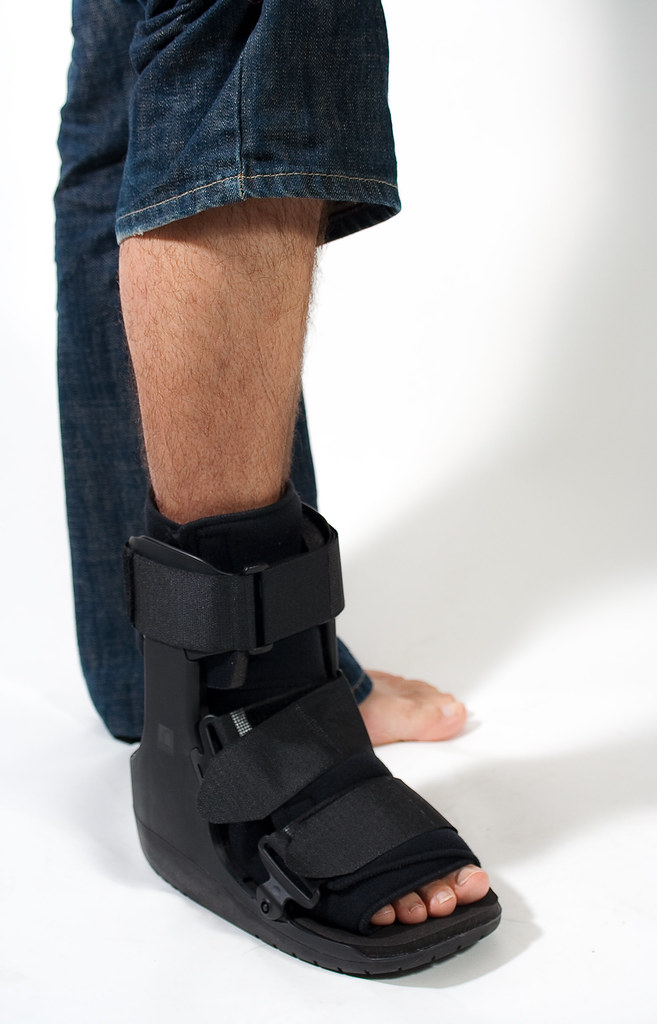 walking boot for sprained ankle 28 images buy