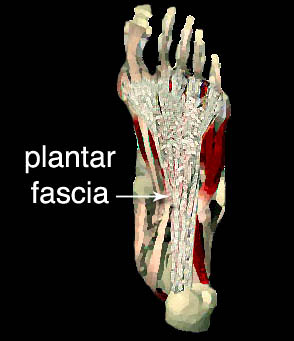 correct placement of tens electrodes for plantar fascitis