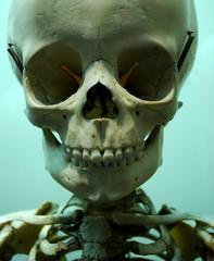 National Museum of Health and Medicine (Marcellina.) Tags: skeleton army skull weird child sad display alien eerie exhibit spooky dcist oddity deformation walterreed walterreedarmymedicalcenter medicaloddity nationalmuseumofhealthandmedicine