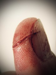 ...oops (the3robbers) Tags: paper studio blood cut nail injury slice cutting thumb painful the3robbers