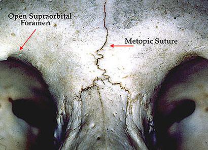 Suture Plaid Und Endobutton Dexon Sutures Advantages