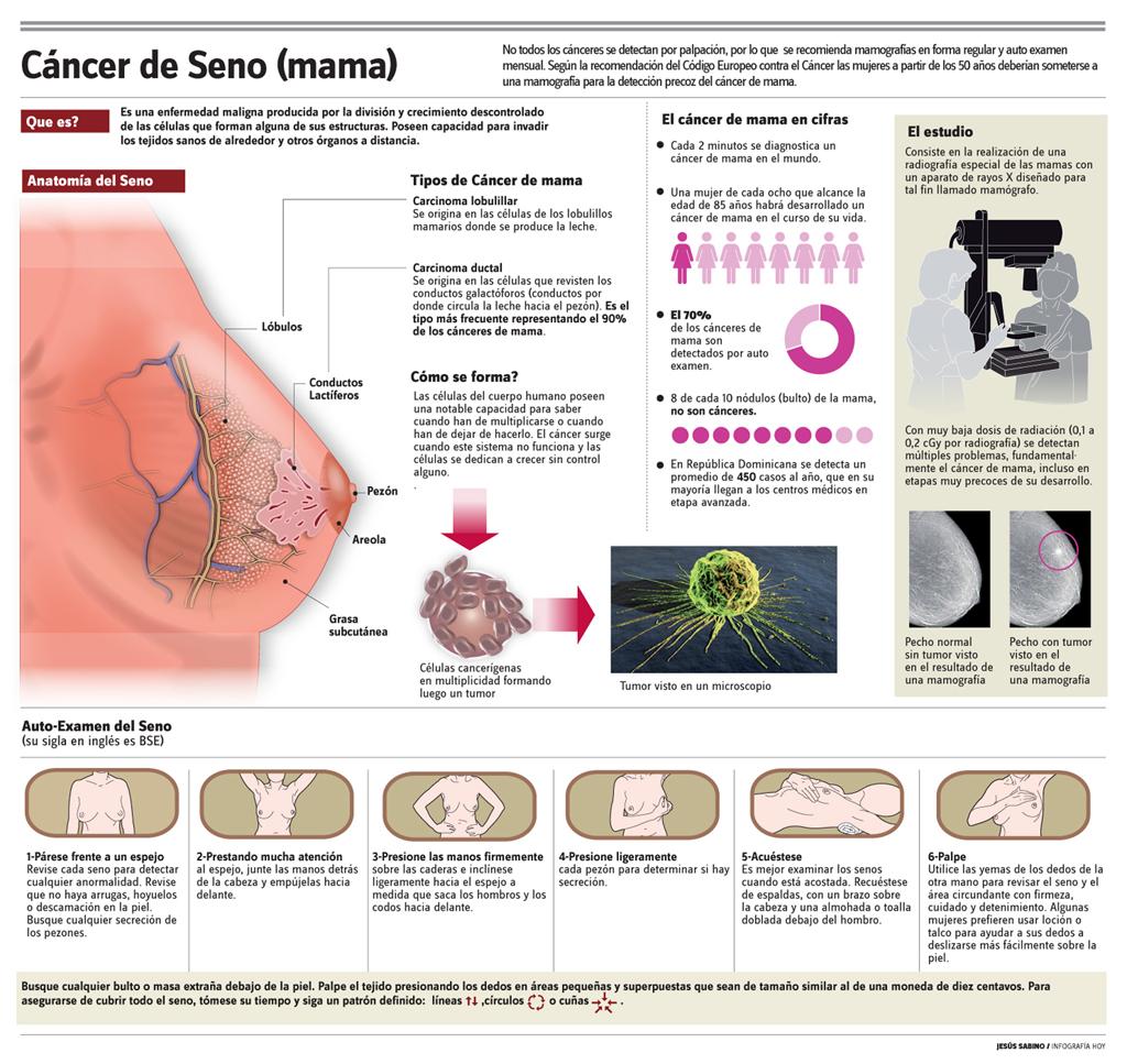Resultado de imagen para infografia cancer