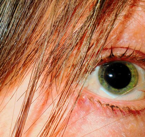 dilatedeye