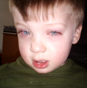 TJ had a nasty case of pink eye I wish I could remember the adjective the