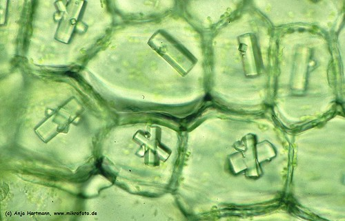 Cells of a Onion skin with oxalate crystals