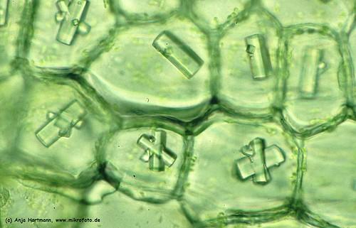 Onion skin cells 200x