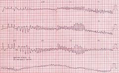 Ventricular Fibrillation (VF)