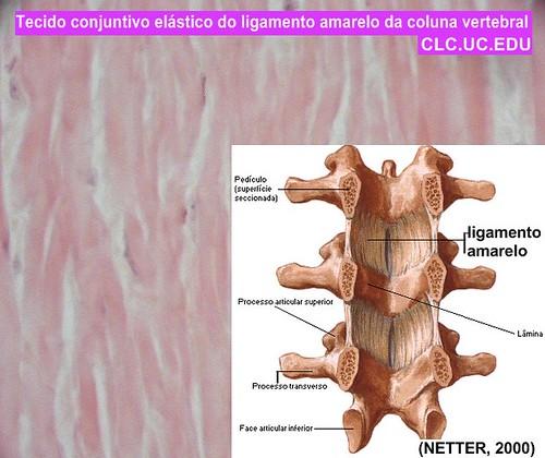 Tecido elastico do ligamento amarelo da Coluna Vertebral