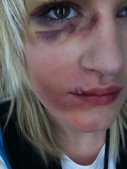 The World's Best Photos of bruising and makeup - Flickr ...