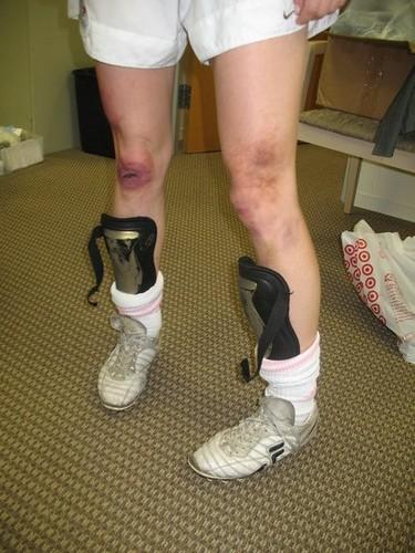 soccer bruises