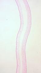 Monochorionic/Diamniotic Twins, Intervening Membrane - by euthman