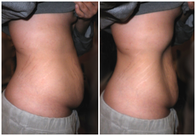 löst fett på magen