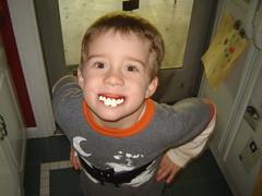 """He loves his """"vampire"""" teeth"""