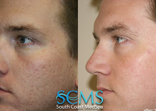 best make up for acne scars for acne scars asian make up tips. Black Bedroom Furniture Sets. Home Design Ideas