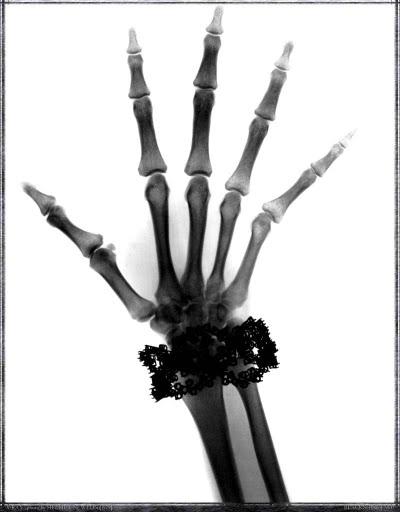 Helmut Newton x-ray bracelet