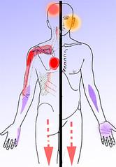 dolores ocasionados por latigazo cervical