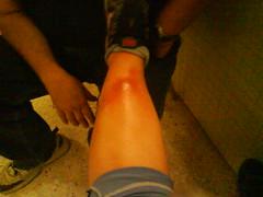 Su problema en la pierna