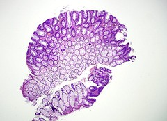 Qiao's Pathology: Colon - Tubular Adenoma (Jian-Hua Qiao, MD, FCAP) Tags: microscopic colon adenoma